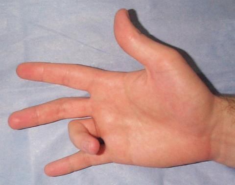 common cause of hand pain